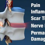 graphic of spinal vertebra