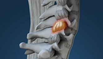 Weakened Ligaments After Whiplash