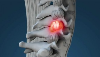 Radicular Pain and Chiropractic