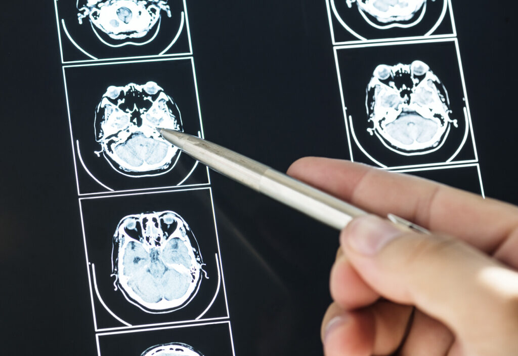 medical professional using pointer at brain X-rays