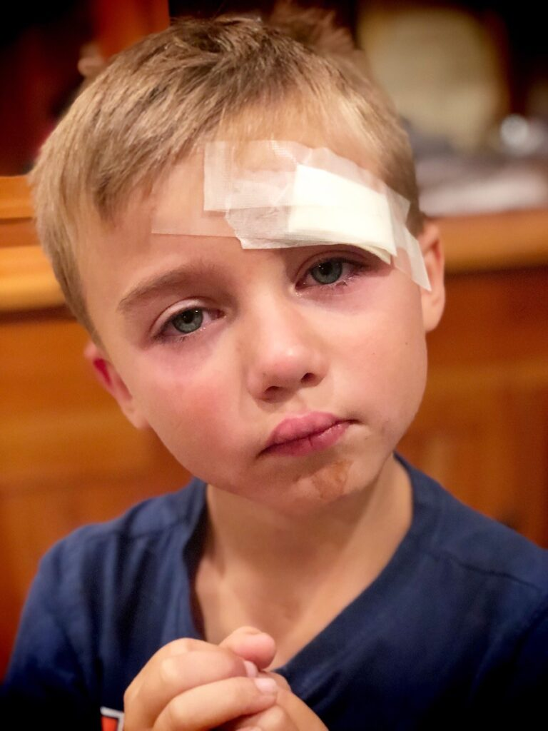 young boy with bruised face and bandage on his forehead.